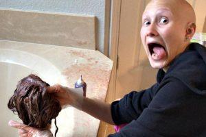 Quedarse sin pelo: La alopecia areata y la historia de Denise Cirone