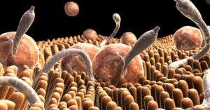 Gusanos y otros parásitos que viven dentro de tu cuerpo
